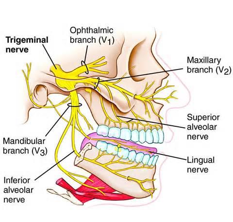 Trigeminal Neuralgia4